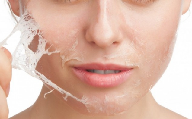 DOES CHEMICAL PEELING AFFECT THE SKIN image