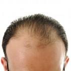 natural-ayurvedic-home-remedies-for-hair-loss-6