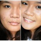 removing-acne-scar